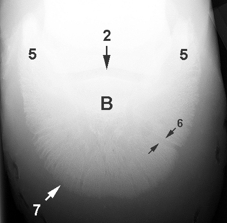 Radiograph of the Dorsoplantar view