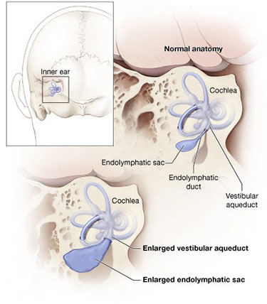 Inner ear diagram - endolymphatic sac