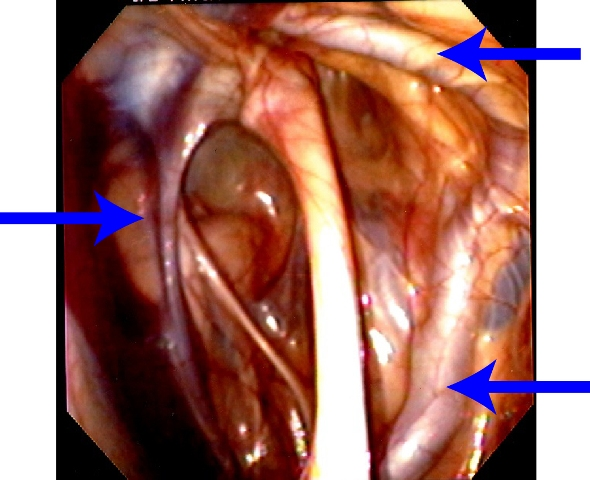 Guttural Pouch Mycosis